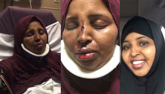 Mother Rahma Warsame battered